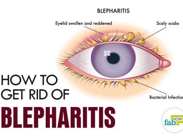 feat how to get rid of blepharitis