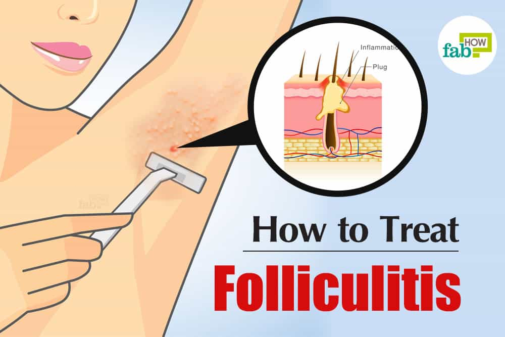 How To Get Rid Of Folliculitis Get Quick Relief With 7