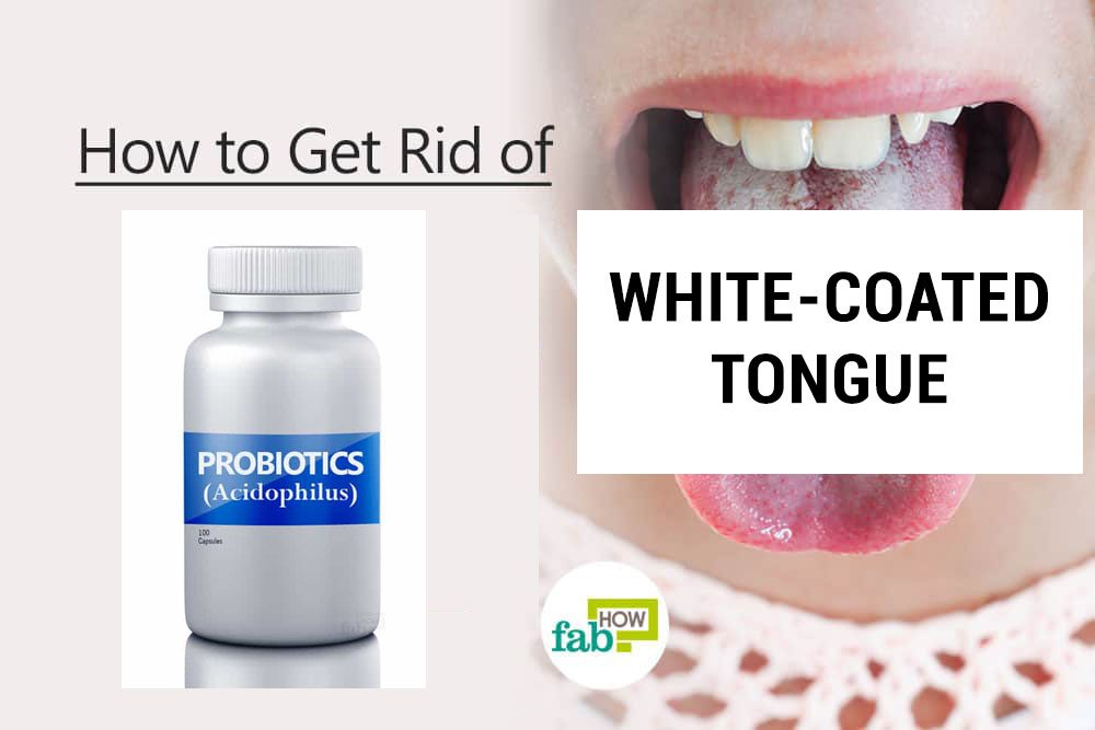 How To Get Rid Of A White Coated Tongue With Just 1 Ingredient Fab How