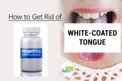 How to Get Rid of a White-Coated Tongue