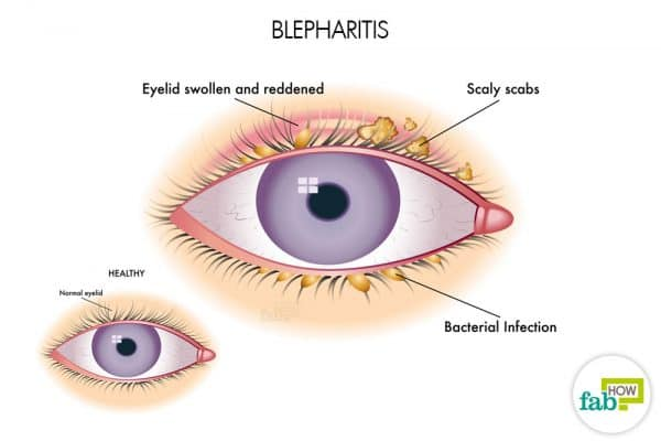 intro how to get rid of blepharitis