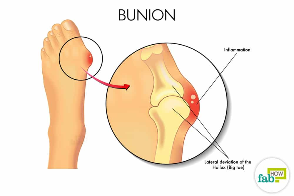 How to Get Rid of Bunions with Home Remedies (Surgery-Free) | Fab How