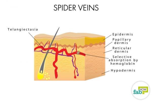 diagrammatic representation of spider veins