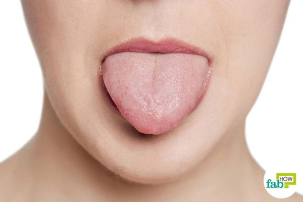 How to Get Rid of Tongue Blisters