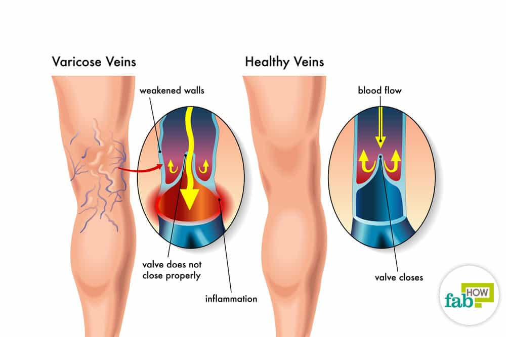 get rid of visible veins