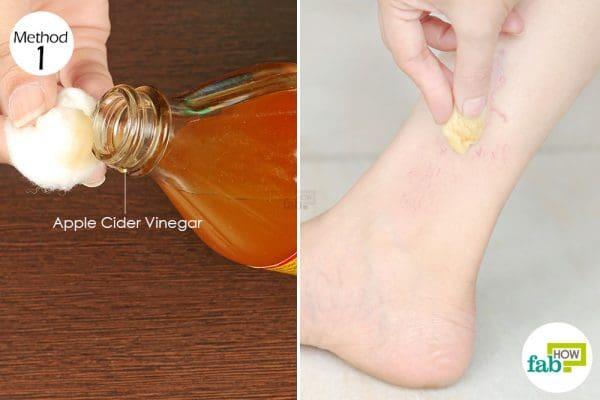 Apply apple cider vinegar on the spider veins