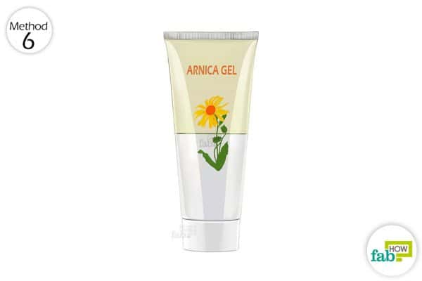 single-step treatment apply arnica gel twice daily to get rid of spider veins