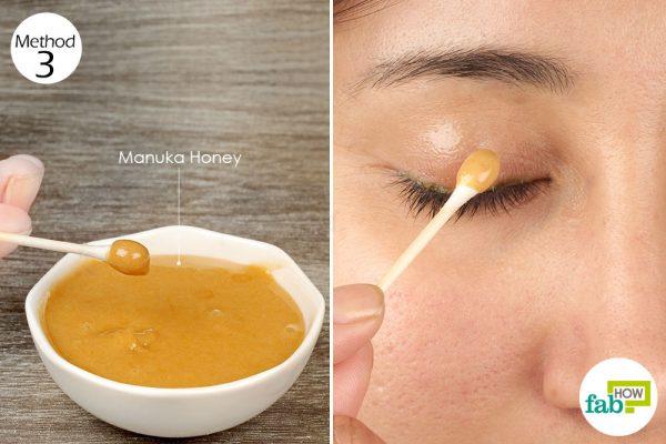 apply manuka honey on the infected eyelids