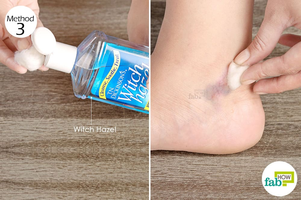how to remove varicose