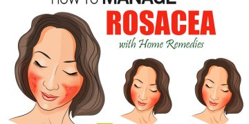feat how to get rid of rosacea