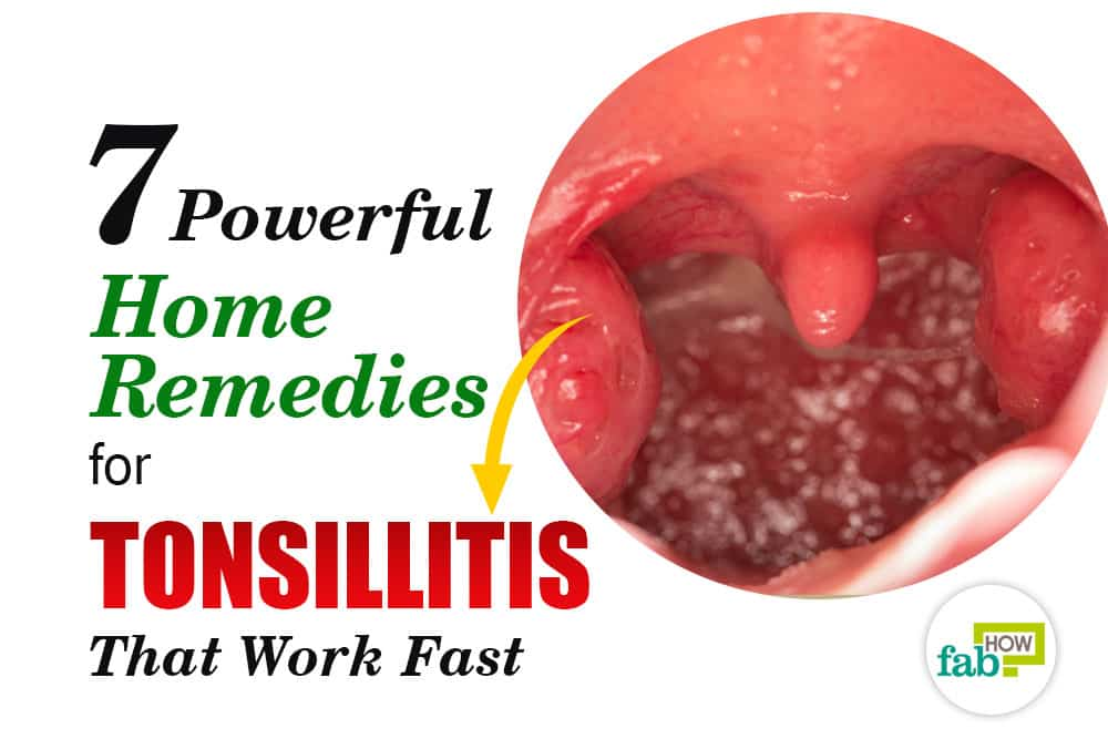 Home remedies for tonsillitis that work really fast