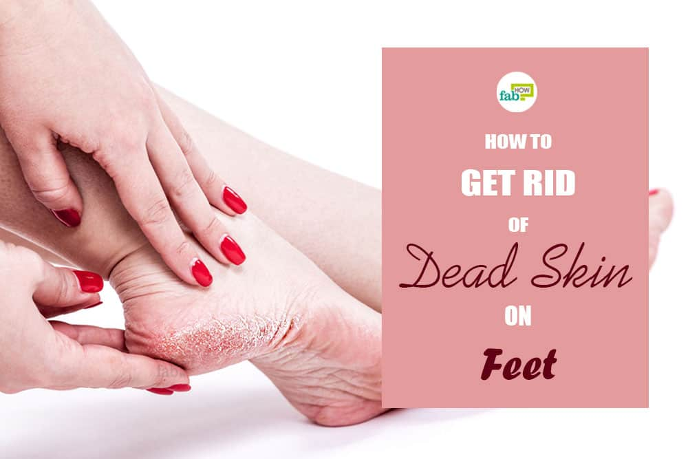 feat how to get rid of dead skin on feet