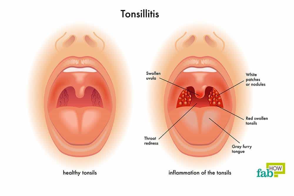 How to Get Rid of Food Poisoning How to Get Rid of Food Poisoning new pictures