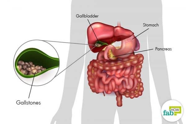 Gallbladder and gallstones diagram.