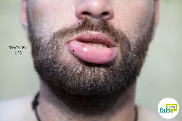 Swollen lips can be a source of both pain and embarrassment.