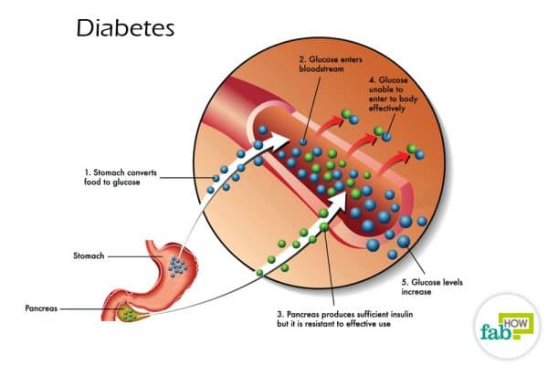 intro diagramatic representation of diabetes