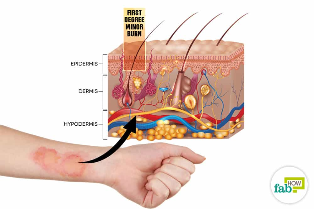 Natural Treatment For First Degree Burns