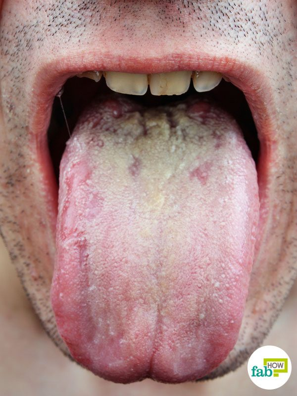 intro white coated tongue