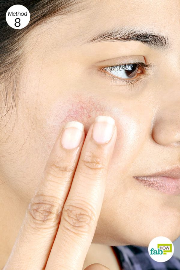 apply coconut oil to get rid of rosacea