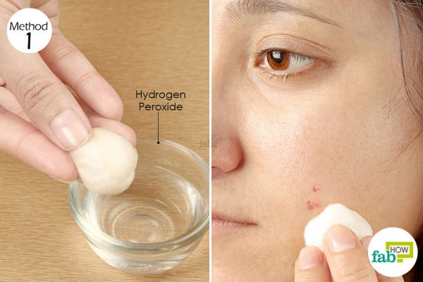 Dab diluted hydrogen peroxide over the acne to dry and disinfect the breakout