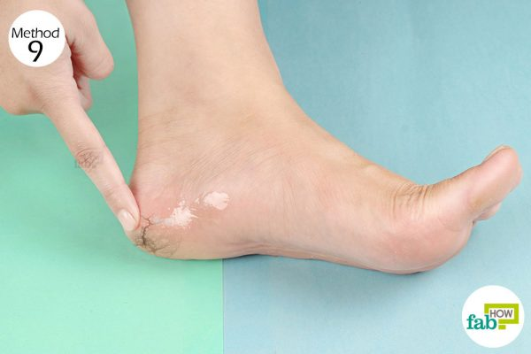 Massage with castor oil to heal and soften your cracked heels