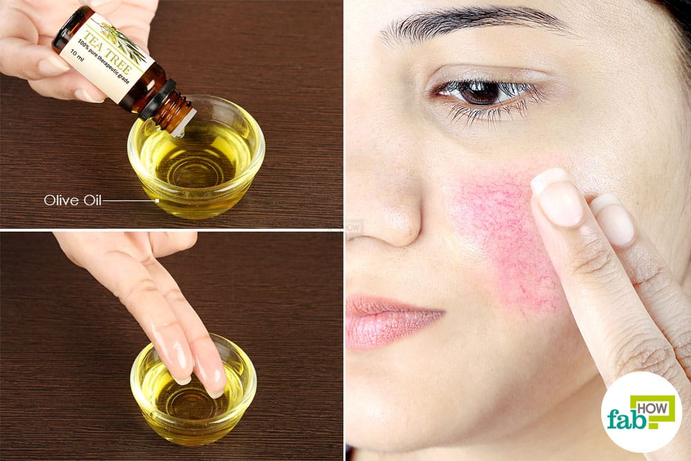 How Can You Get Rid Of Rosacea Naturally
