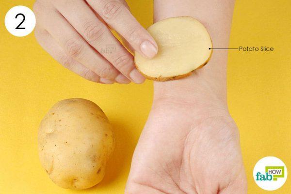 apply potato slice to treat minor burn