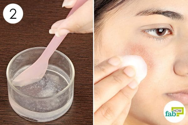 apply the mix on your face to get rid of rosacea