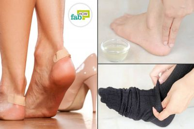 Get Rid of a Shoe Bite