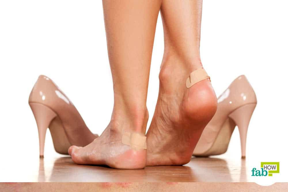 Home Remedies to Get Rid of a Shoe Bite