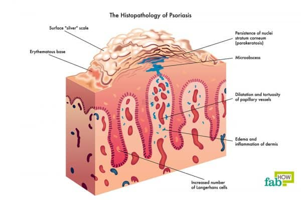 Diagramatic representation of skin psoriasis to get rid of psoriasis