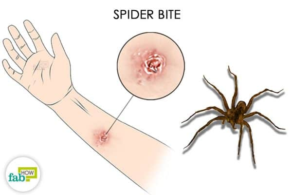 Spider bites can take the form of a painful blister or rash