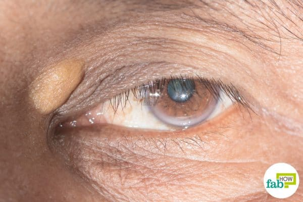 How to get rid of xanthelasma