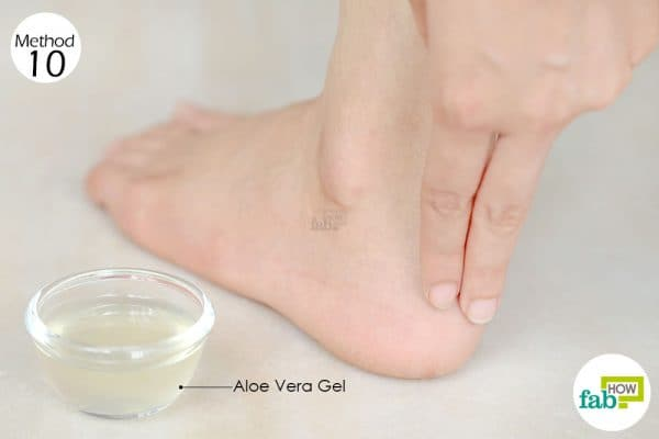 Apply aloe vera gel several times a day to get rid of a shoe bite
