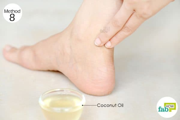 Apply coconut oil to heal a shoe bite