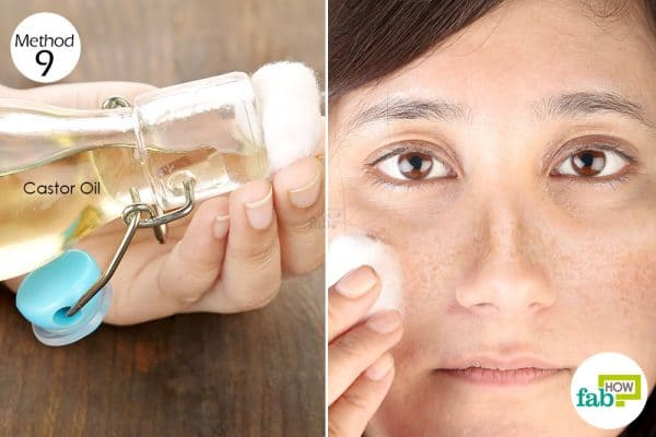 Smear some cold-pressed castor oil on the affected areas to get rid of hyperpigmentation