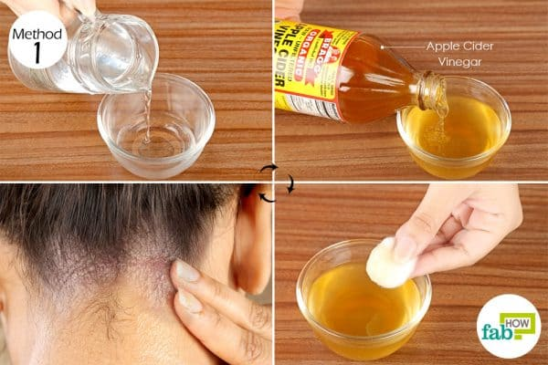 Apply diluted apple cider vinegar on your scalp and other affected areas to get rid of seborrheic dermatitis
