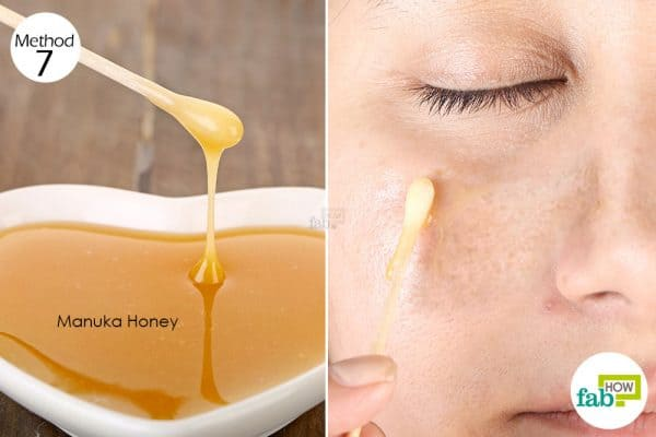 Apply manuka honey on the affected areas to get rid of hyperpigmentation