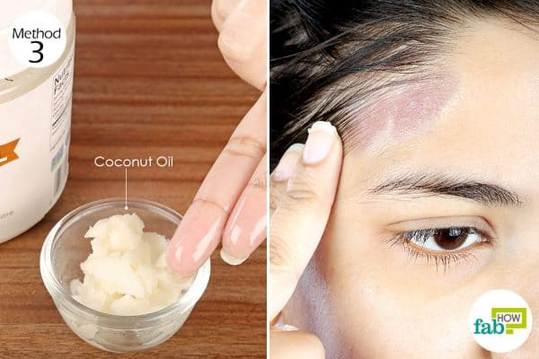 Apply coconut oil for 1 to 2 weeks to clear dermatitis to get rid of seborrheic dermatitis