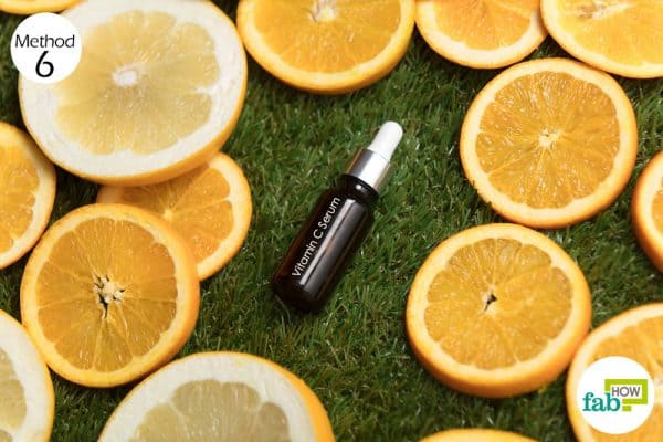 Apply vitamin C serum on the affected skin to get rid of hyperpigmentation