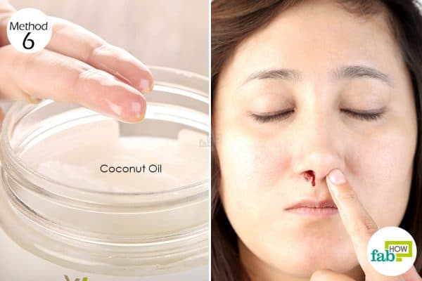 Coconut oil can be used both as a treatment and preventive measure for a nosebleed