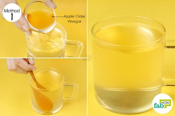 Mix unfiltered apple cider vinegar with 1 cup of warm water to get rid of psoriasis