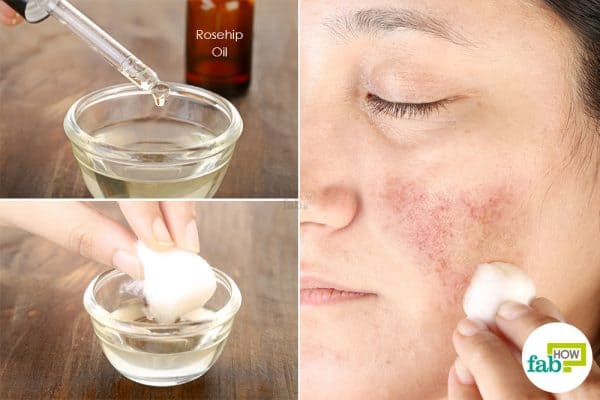 Soak a cotton ball inthe oil blend and apply all over the hyperpigmented skin to get rid of pigmentation
