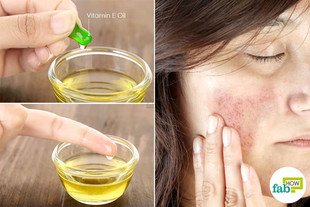 How To Get Rid Of Hyperpigmentation Top 10 Remedies To