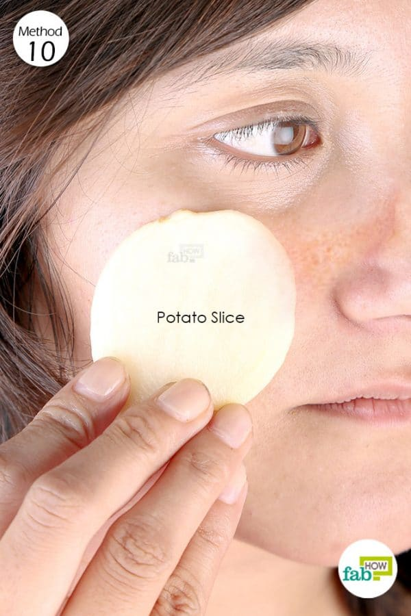 Rub a raw potato slice on the affected area to get rid of hyperpigmentation