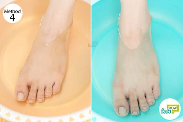 Soaking your aching feet alternatively in hot and cold water reduces inflammation to get rid of foot pain