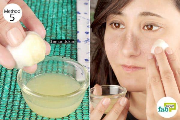Apply fresh lemon juice to get rid of melasma