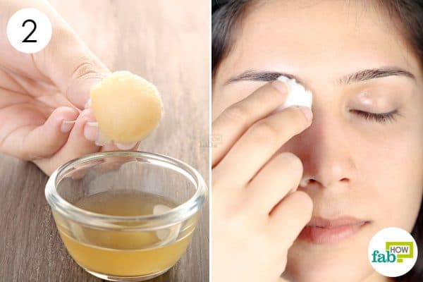 Apply the diluted apple cider vinegar on the affected areas to get rid of xanthelasma