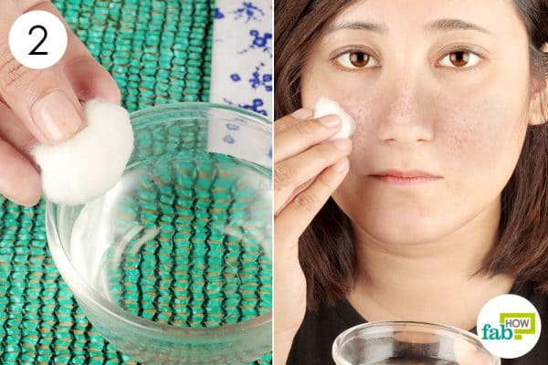 Apply the diluted hydrogen peroxide on the patches to get rid of melasma