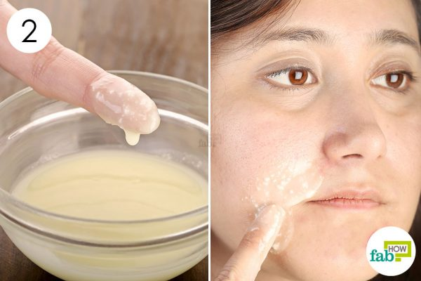 Apply a thin layer of the mix on your face to get rid of perioral dermatitis